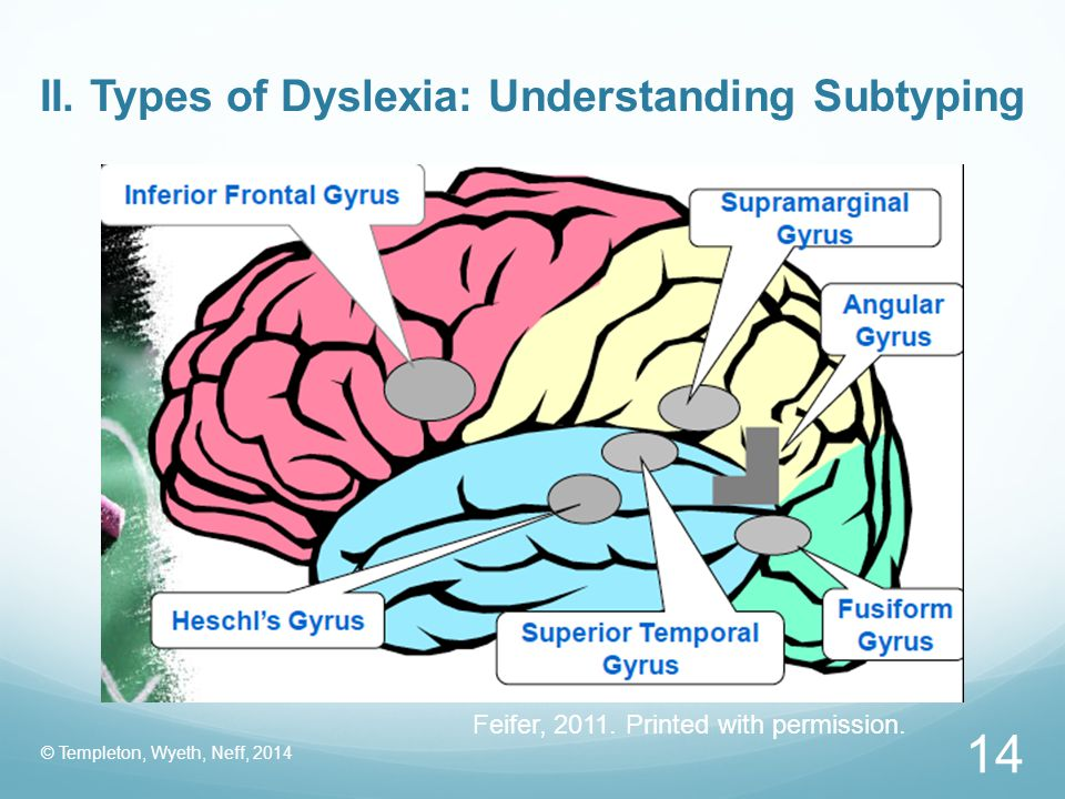 II. Types of Dyslexia: Understanding Subtyping