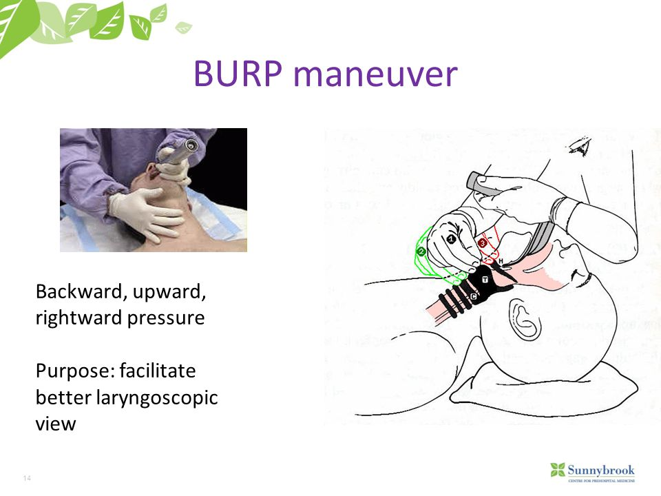 BURP maneuver Backward, upward, rightward pressure