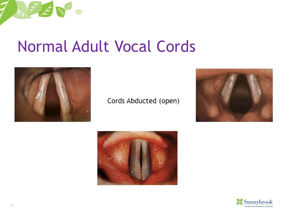 Normal Adult Vocal Cords