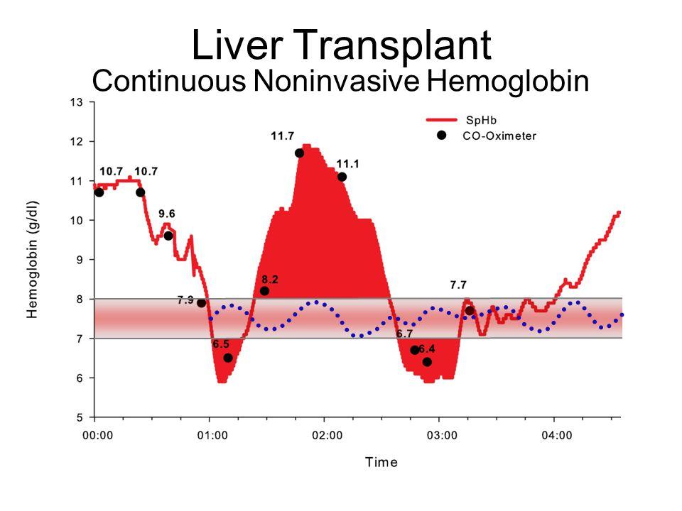 Liver Transplant Continuous Noninvasive Hemoglobin