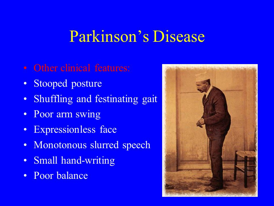 Parkinson's Disease Other clinical features: Stooped posture