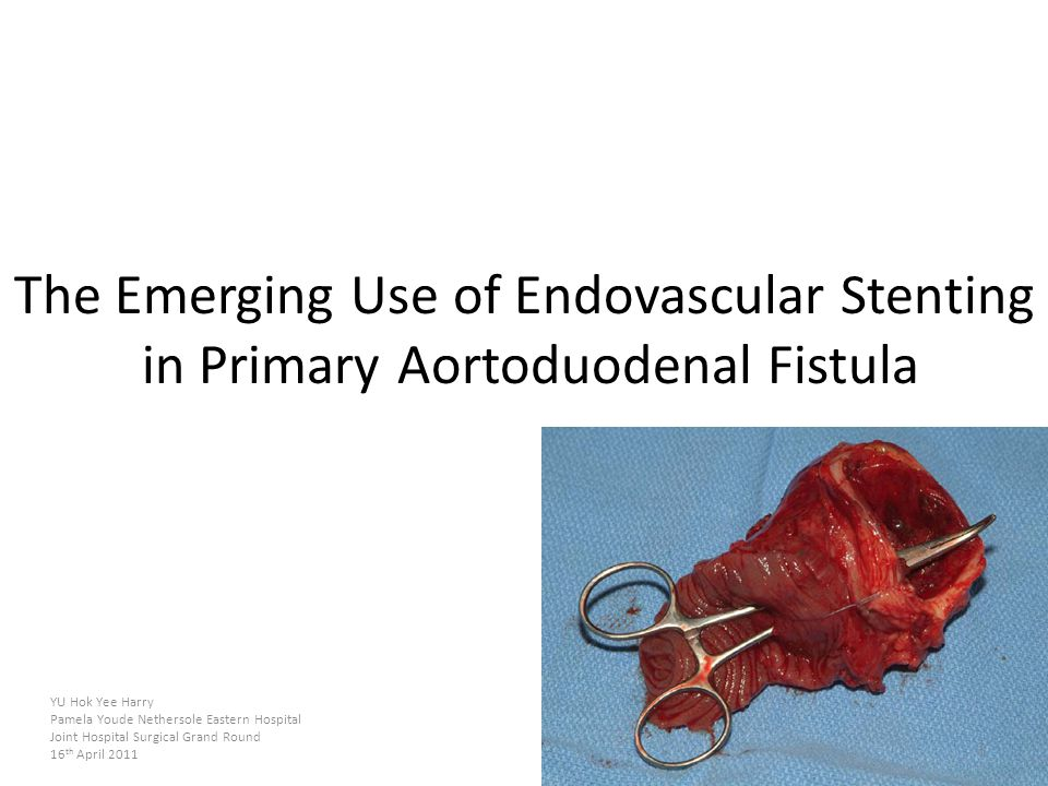 The Emerging Use of Endovascular Stenting in Primary Aortoduodenal Fistula