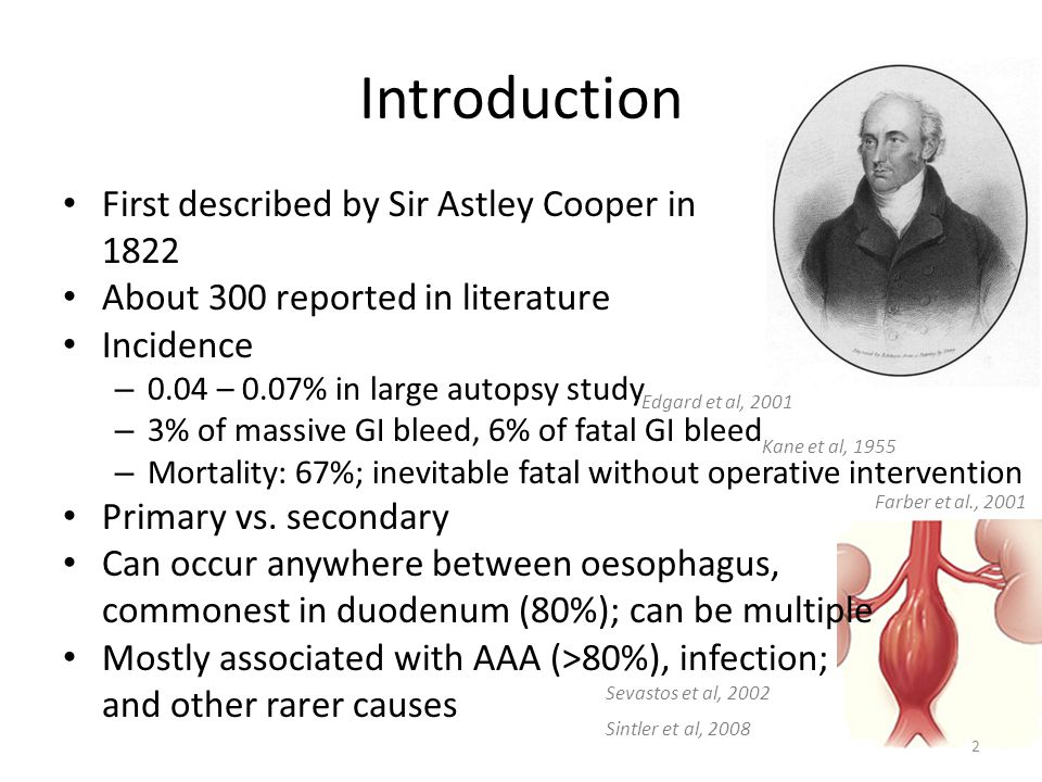 Introduction First described by Sir Astley Cooper in 1822