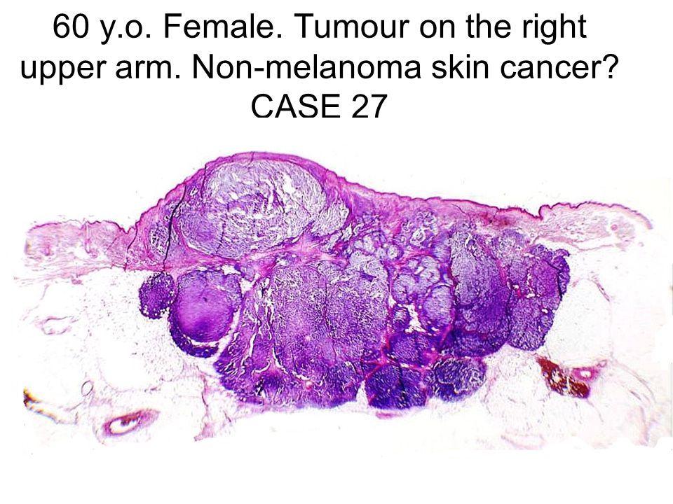 60 y. o. Female. Tumour on the right upper arm
