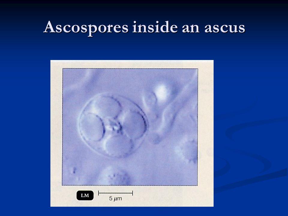 Ascospores inside an ascus