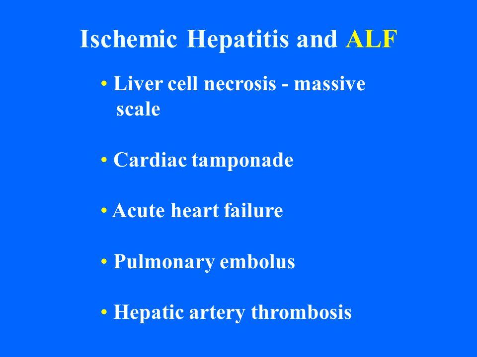 Ischemic Hepatitis and ALF