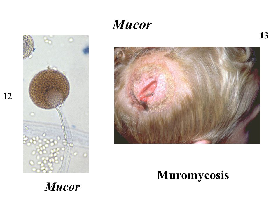 Mucor 13 12 Muromycosis Mucor