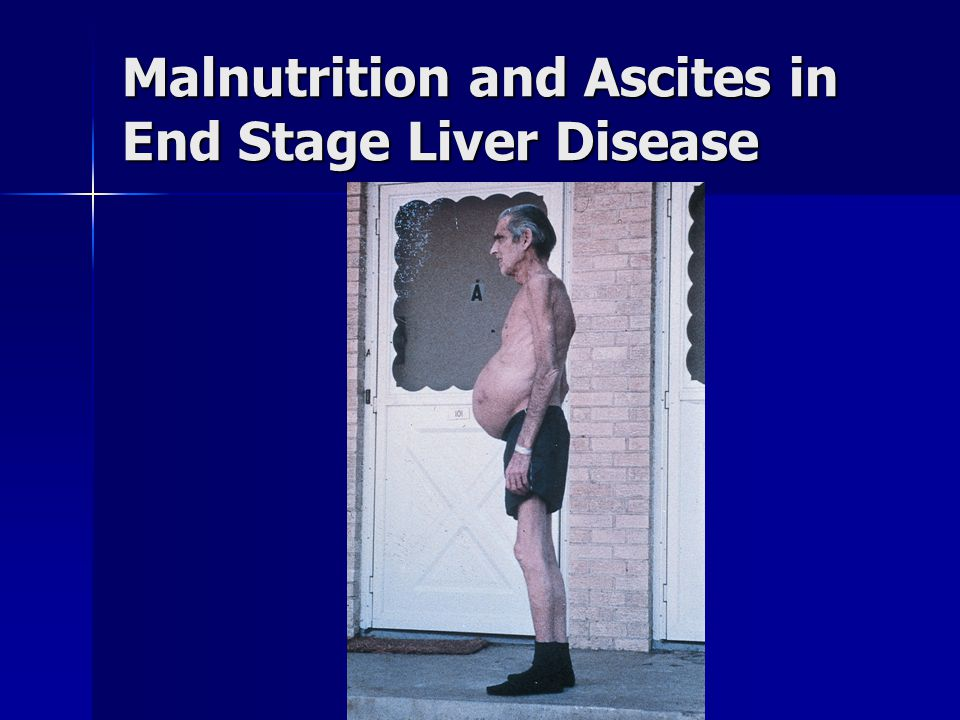 Malnutrition and Ascites in End Stage Liver Disease