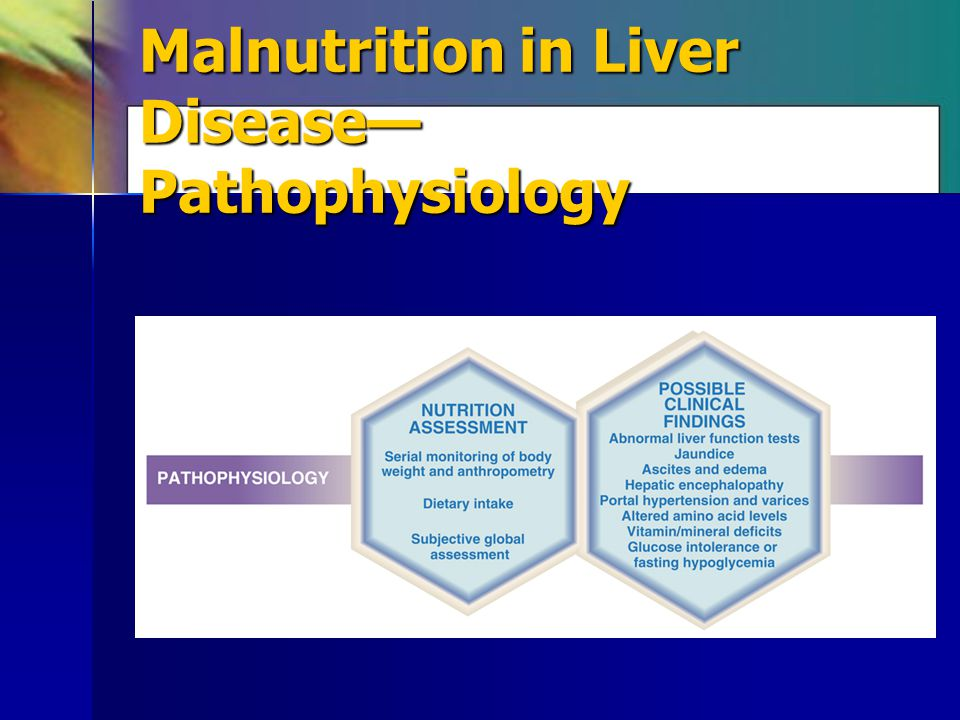 Malnutrition in Liver Disease—Pathophysiology