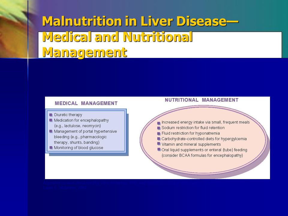 Malnutrition in Liver Disease—Medical and Nutritional Management