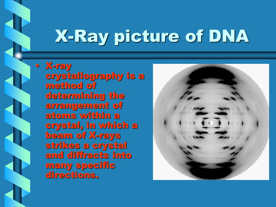 X-Ray picture of DNA