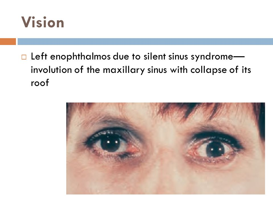 Vision Left enophthalmos due to silent sinus syndrome— involution of the maxillary sinus with collapse of its roof.