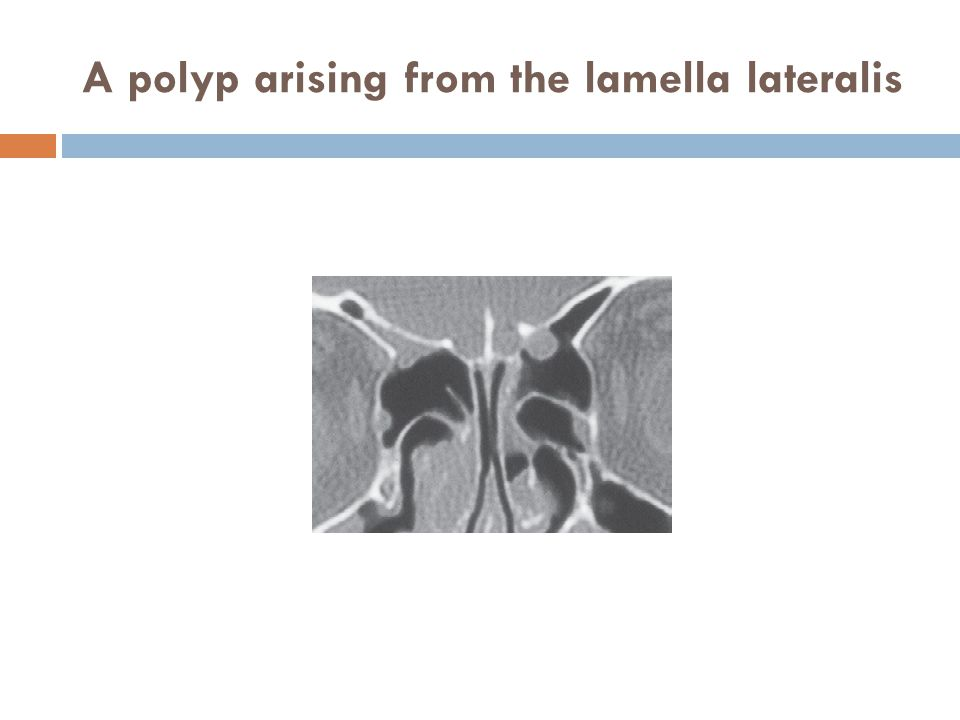 A polyp arising from the lamella lateralis
