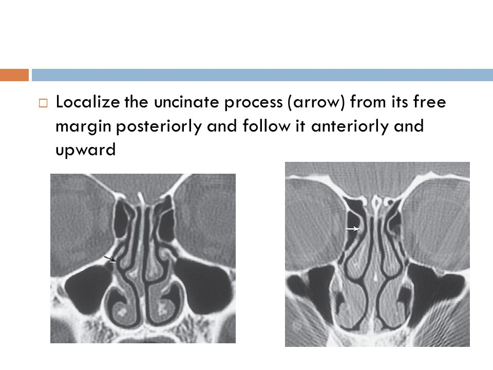 Localize the uncinate process (arrow) from its free margin posteriorly and follow it anteriorly and upward