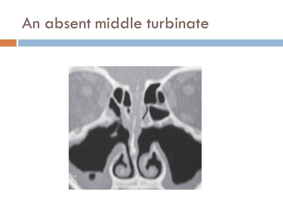 An absent middle turbinate