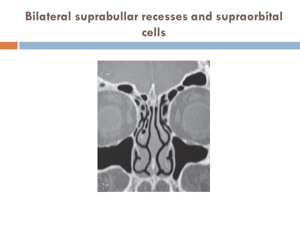 Bilateral suprabullar recesses and supraorbital cells