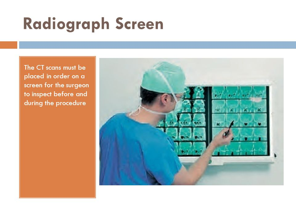 Radiograph Screen The CT scans must be placed in order on a screen for the surgeon to inspect before and during the procedure.