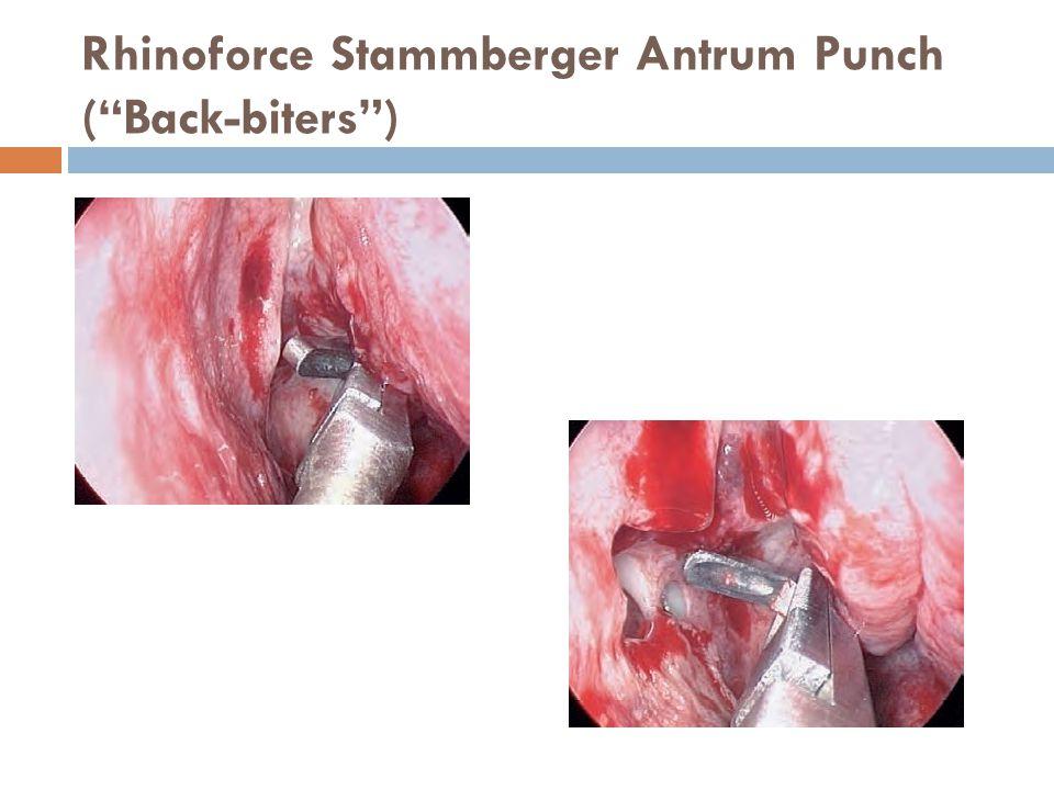 Rhinoforce Stammberger Antrum Punch ( Back-biters )