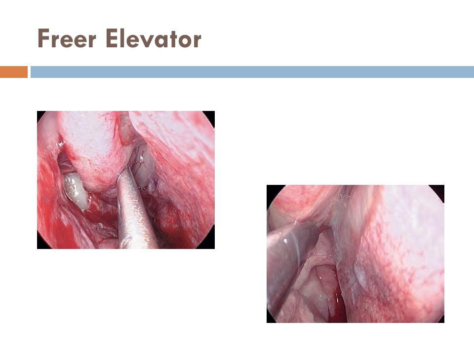 Freer Elevator