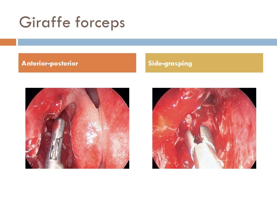 Giraffe forceps Anterior-posterior Side-grasping