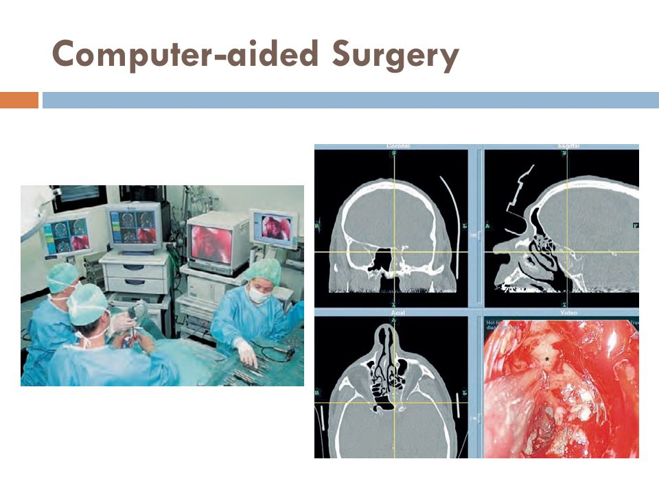 Computer-aided Surgery