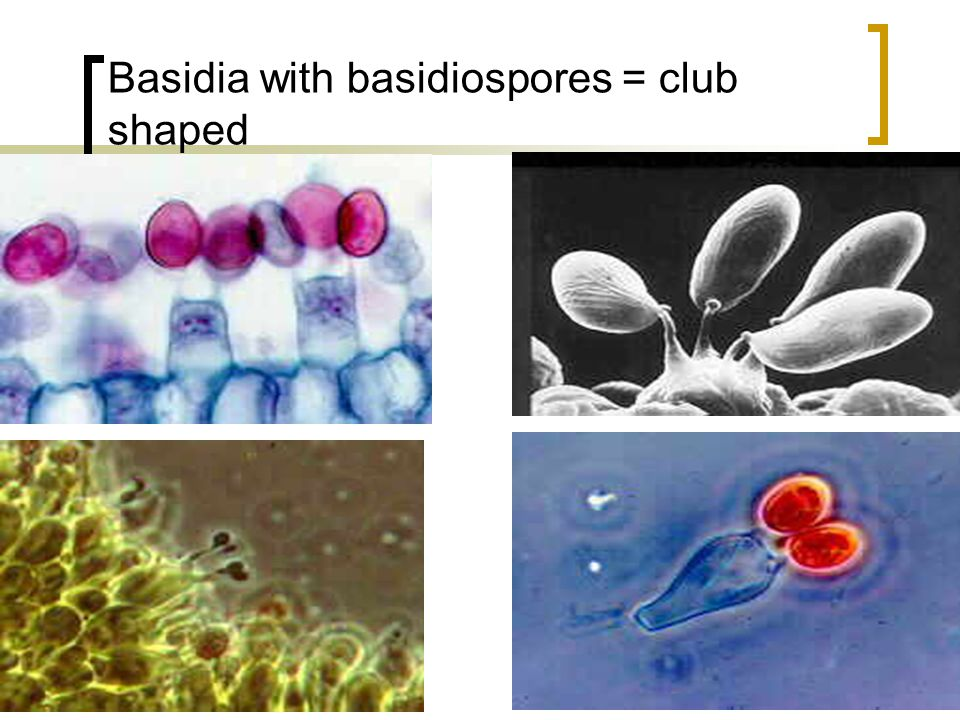 Basidia with basidiospores = club shaped