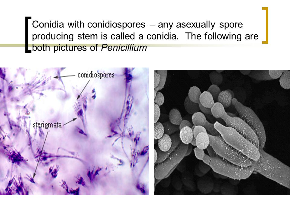 Conidia with conidiospores – any asexually spore producing stem is called a conidia.