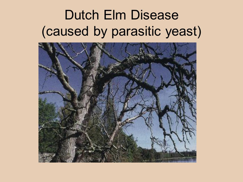 Dutch Elm Disease (caused by parasitic yeast)