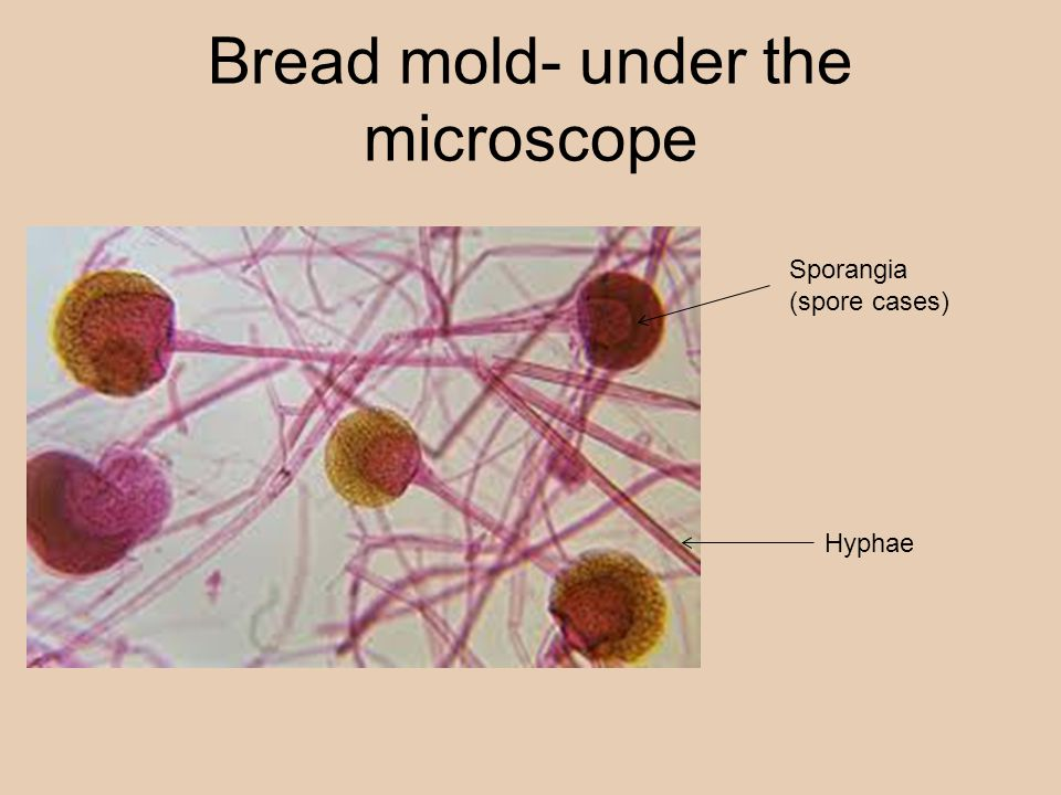 Bread mold- under the microscope