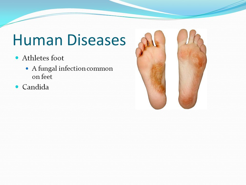 Human Diseases Athletes foot A fungal infection common on feet Candida