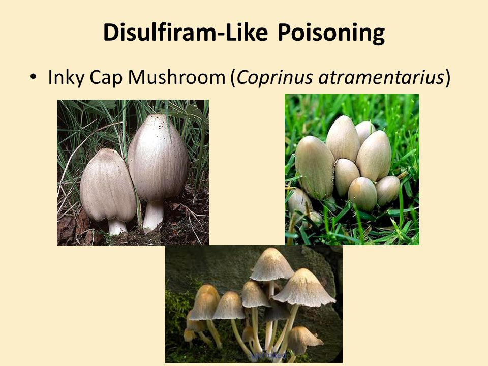 Disulfiram-Like Poisoning