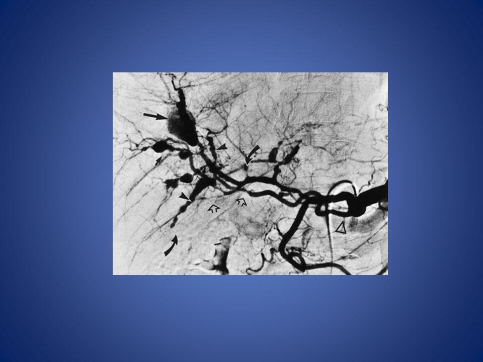 Celiac arteriogram in PAN
