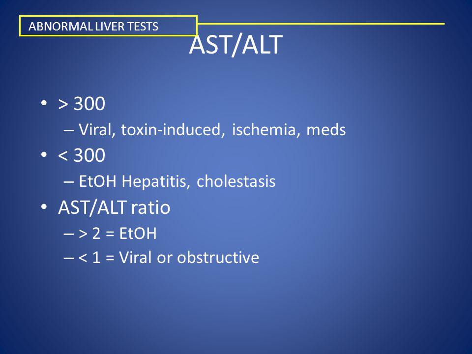 AST/ALT > 300 < 300 AST/ALT ratio