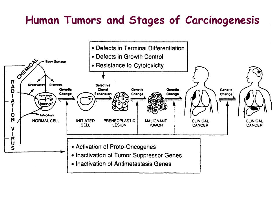 Human Tumors and Stages of Carcinogenesis