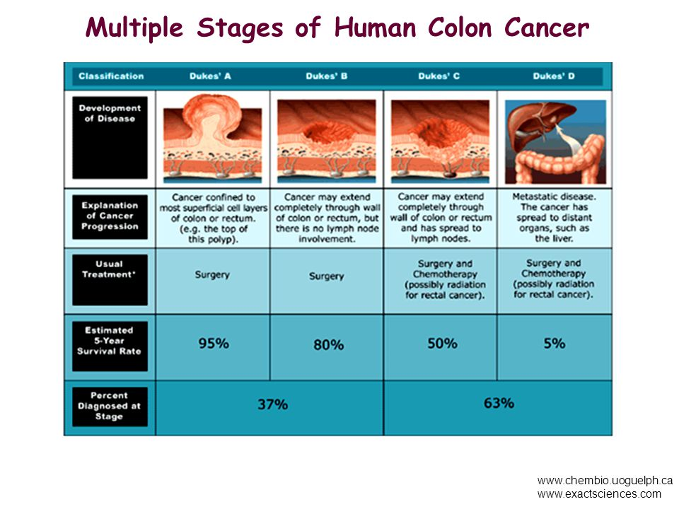 Multiple Stages of Human Colon Cancer