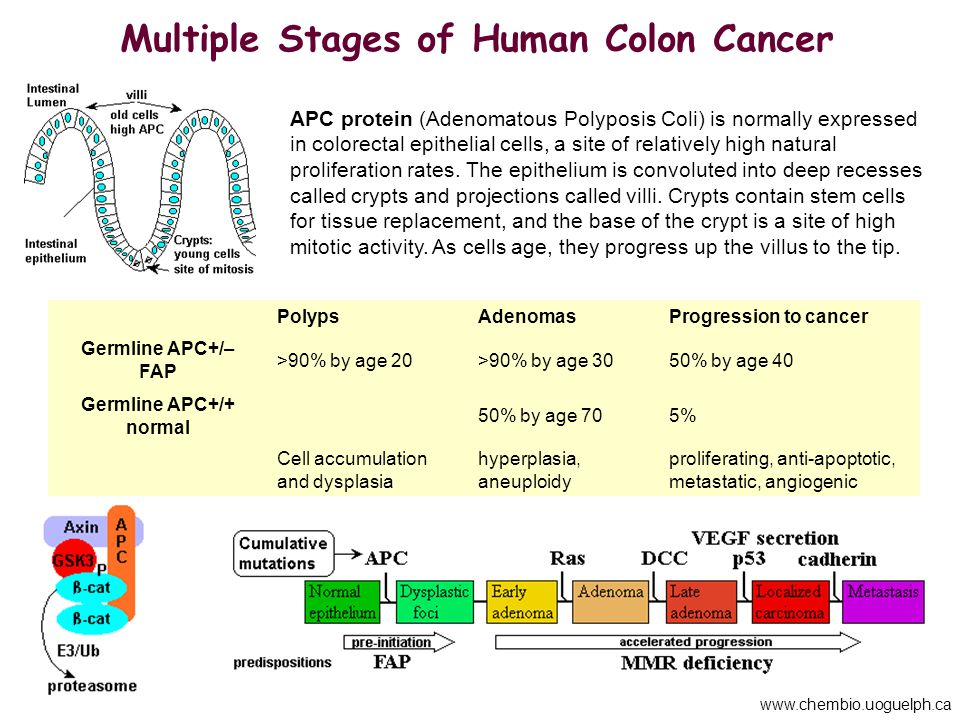 Multiple Stages of Human Colon Cancer Germline APC+/+ normal