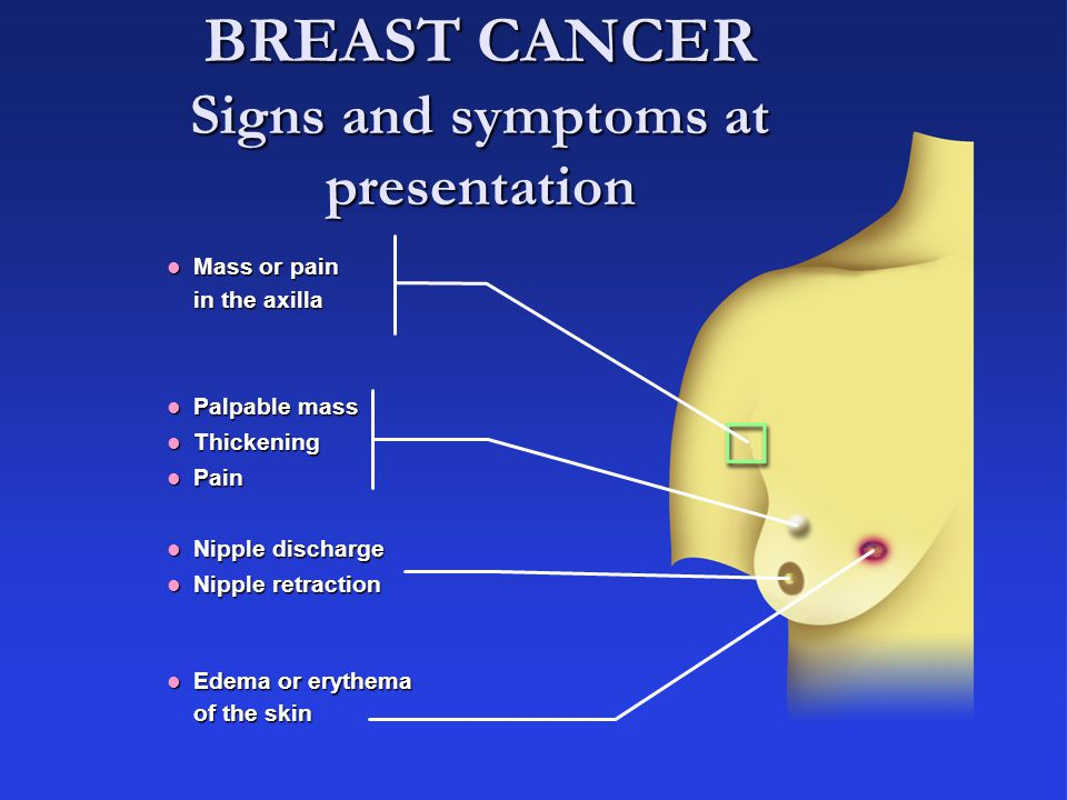 BREAST CANCER Signs and symptoms at presentation
