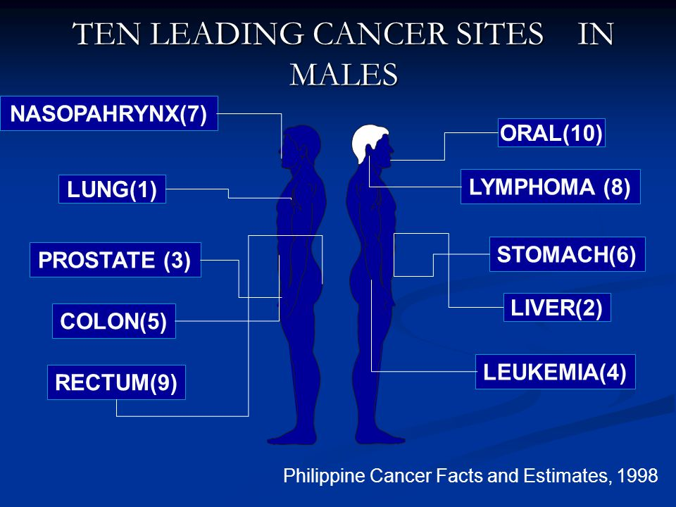 TEN LEADING CANCER SITES IN MALES