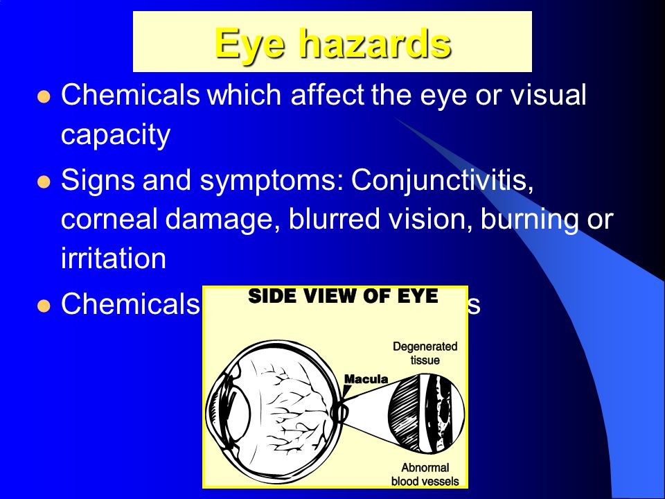 Eye hazards Chemicals which affect the eye or visual capacity