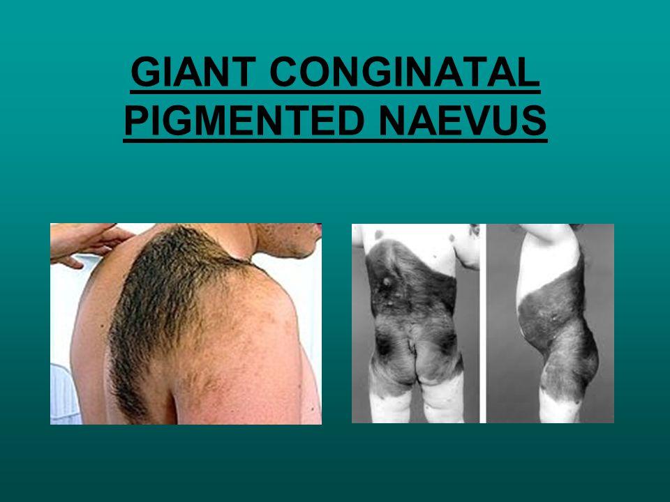 GIANT CONGINATAL PIGMENTED NAEVUS