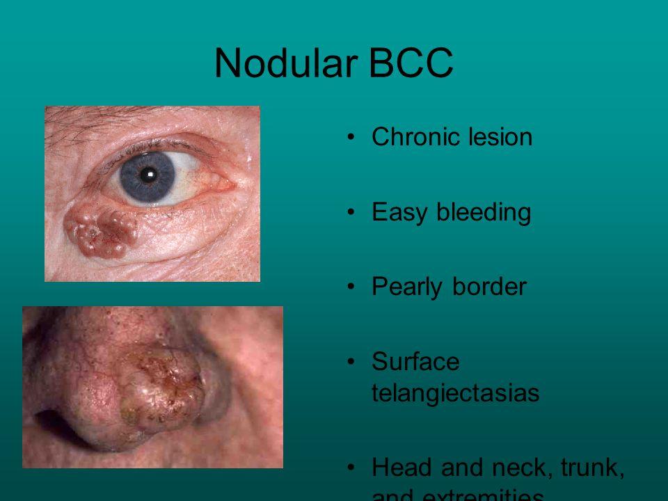 Nodular BCC Chronic lesion Easy bleeding Pearly border