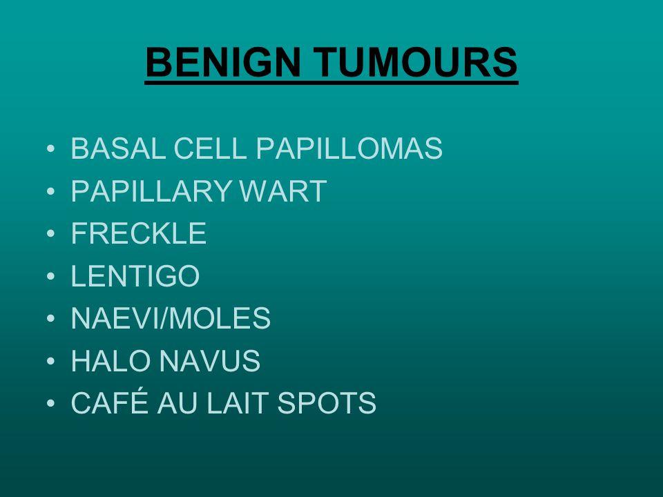 BENIGN TUMOURS BASAL CELL PAPILLOMAS PAPILLARY WART FRECKLE LENTIGO