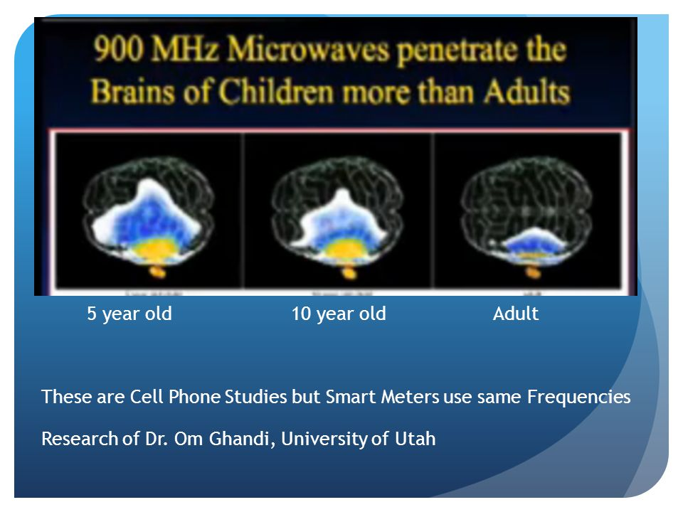 5 year old 10 year old Adult These are Cell Phone Studies but Smart Meters use same Frequencies Research of Dr.