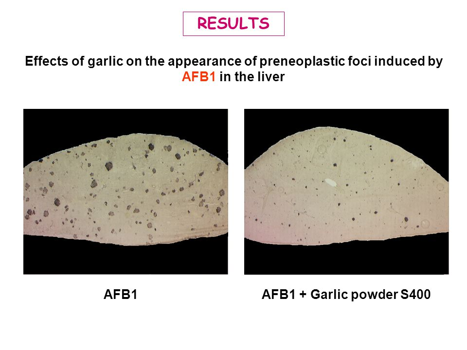 RESULTS Effects of garlic on the appearance of preneoplastic foci induced by AFB1 in the liver. AFB1.