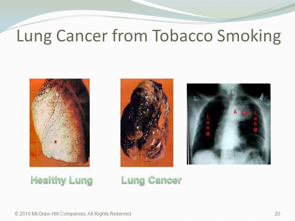 Lung Cancer from Tobacco Smoking