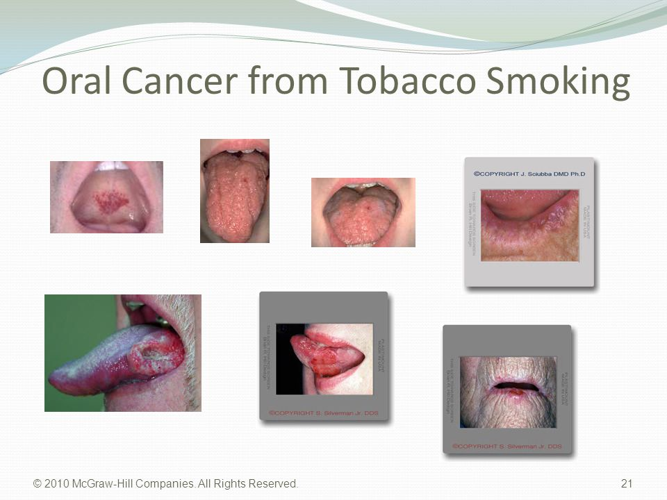 Oral Cancer from Tobacco Smoking