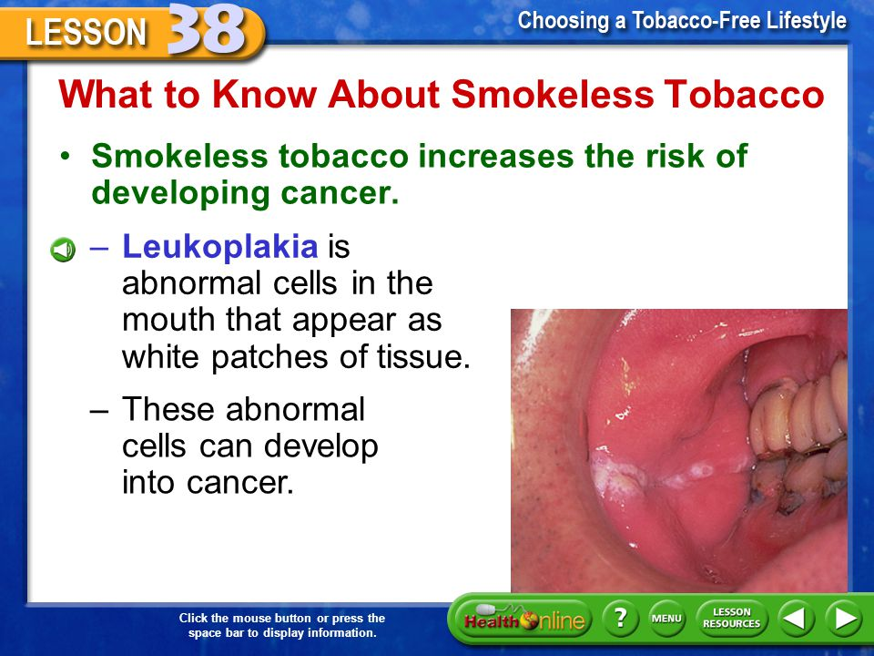 What to Know About Smokeless Tobacco