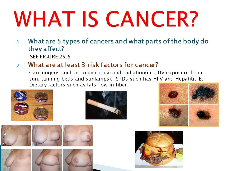 WHAT IS CANCER What are 5 types of cancers and what parts of the body do they affect SEE FIGURE 25.5.