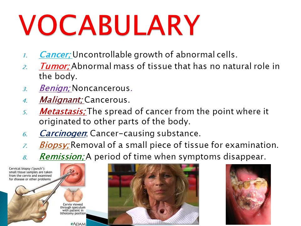 VOCABULARY Cancer; Uncontrollable growth of abnormal cells.