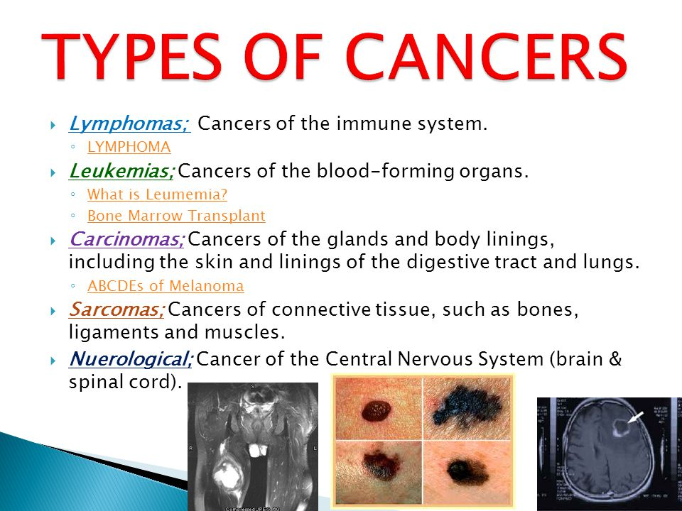 TYPES OF CANCERS Lymphomas; Cancers of the immune system.